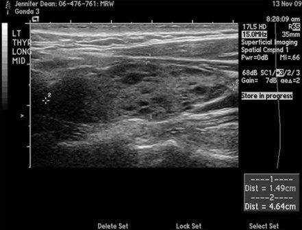 Ultrasound Left Thryoid